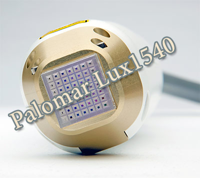 Palomar Lux1540 for Effective Stretch Mark Treatment